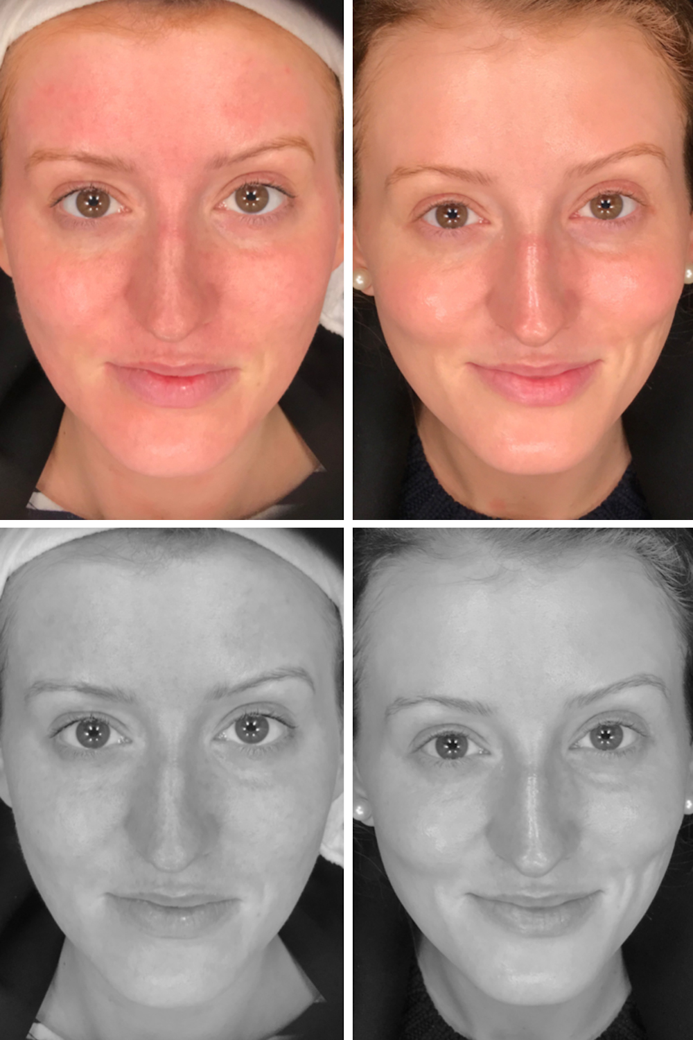 Facial exercise before and after photos
